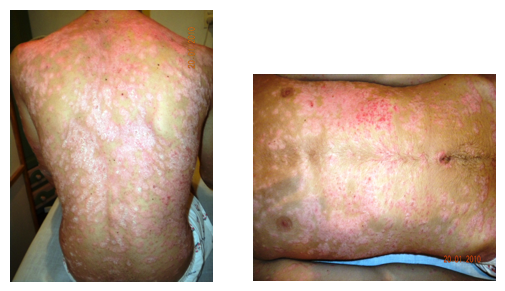 Reiki and Psoriasis - before treatment